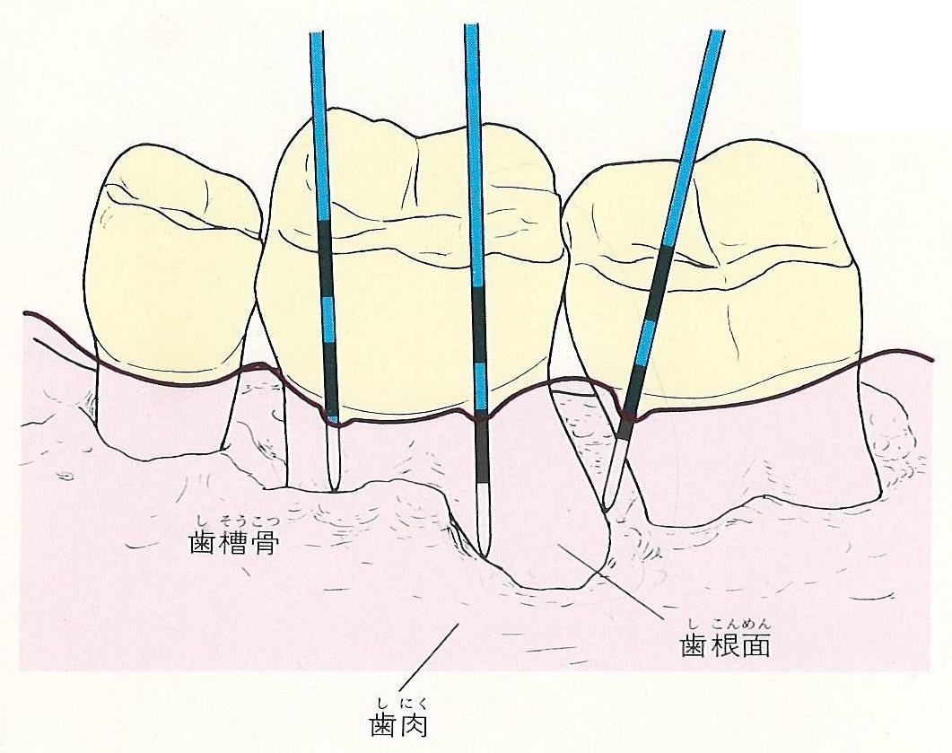 横浜の歯科・歯医者 横浜山手デンタルクリニック 歯と歯肉の間からプローブ(検針)を入れて探る